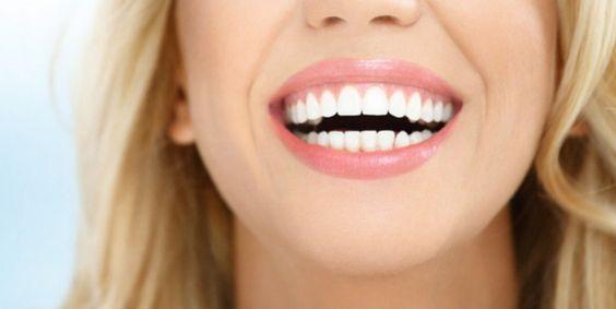 Sbiancamento denti, perché rivolgersi a un dentista